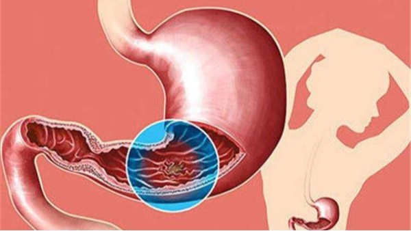 胃酸过多有什么症状?怎么预防