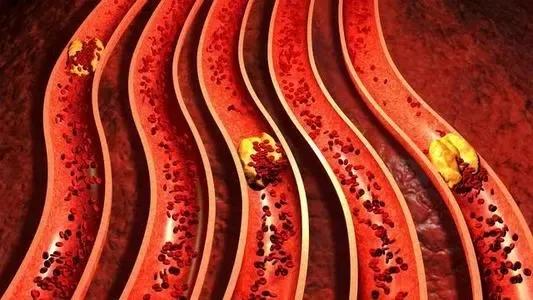 水蛭素、动脉硬化、冠心病