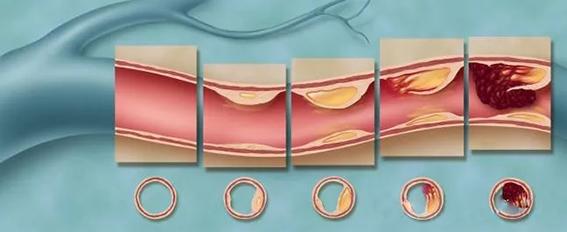 水蛭素颈动脉