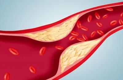 水蛭素、运动、高血压