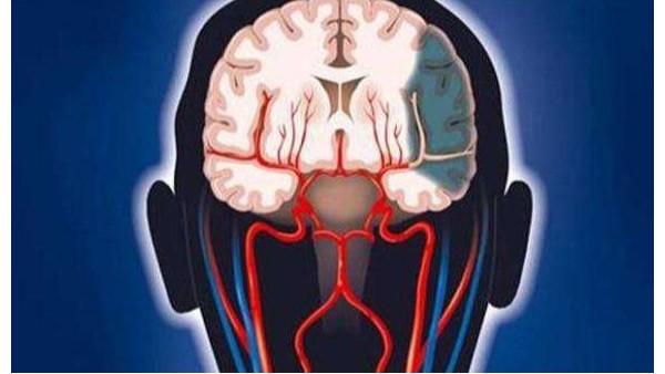 脑血栓的形成以及预防