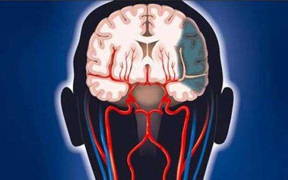 脑血栓的形成