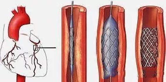 水蛭素心梗支架