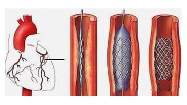 放了支架,该怎么预防再次血管堵塞呢?不妨进来看一看!