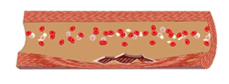 水蛭素改善血液血管