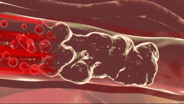 血管堵塞正危及你的生命!想要血管通畅,做好一件事