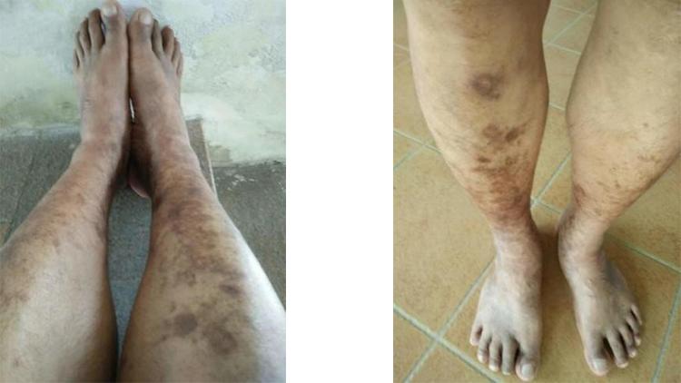 金海科康服用水蛭素案例