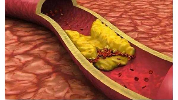 你了解颈动脉斑块吗?