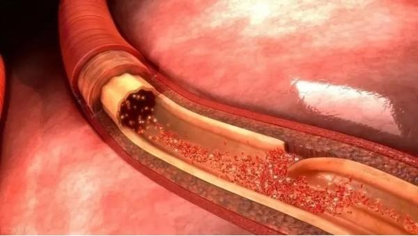 注意!心血管健康和一生中的3个年龄段相关