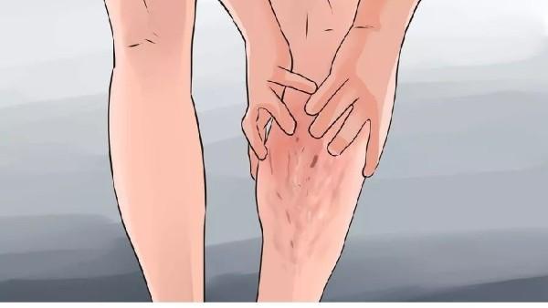 平时预防静脉曲张的方法