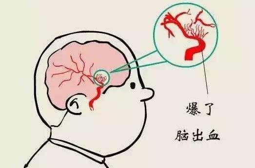 想要预防脑出血,这些习惯必须改掉