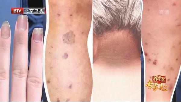 皮肤上出现这些信号,警惕高血糖找上门!