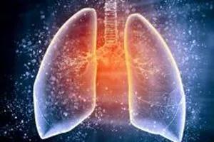 水蛭素,新型冠状病毒,肺炎