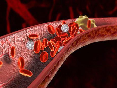 简单动作可以预防静脉血栓