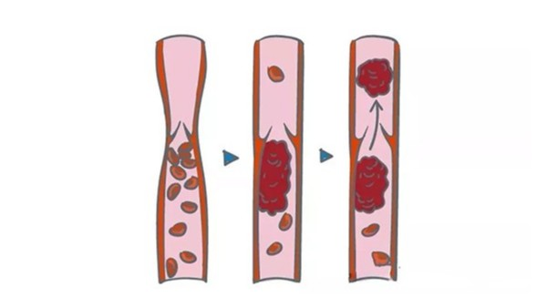 为啥你会有血栓? 教你4招远离动静脉血栓!