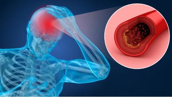 水蛭治疗缺血性中风,可改善患者神经功能缺损