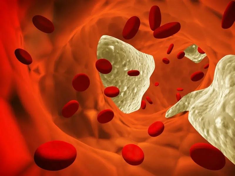 水蛭素、冠心病、血管堵塞
