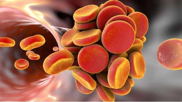 水蛭素如何改善四肢冰冷麻木、静脉曲张及静脉血栓
