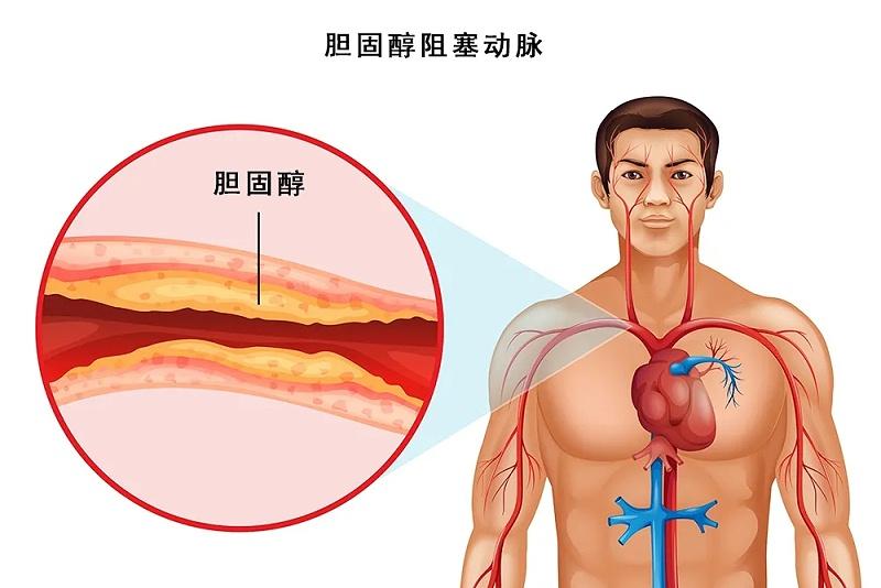 水蛭素、脖子粗、血管硬化