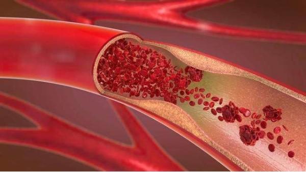 这四种方法可以降低胆固醇