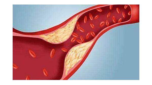 血管硬化的信号有哪些