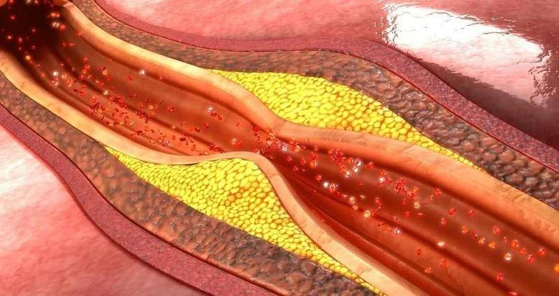 颈动脉斑块应该如何治疗