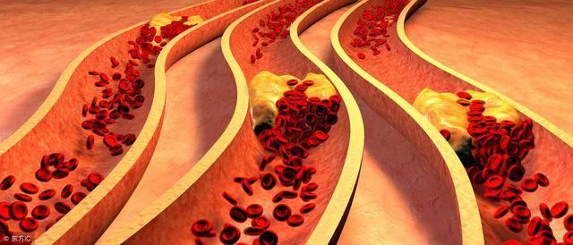 动脉硬化怎么办