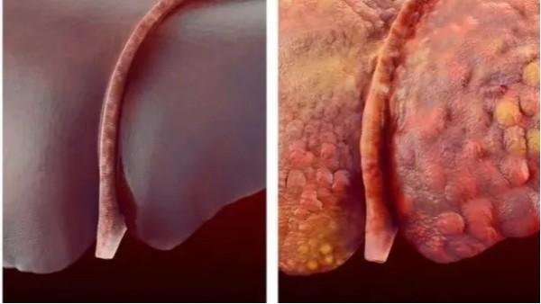 抗肝硬化中药复方中加用水蛭,可提高抗肝纤维化治疗效果