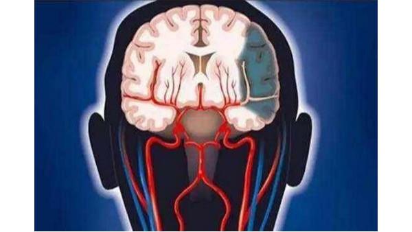 脑血栓的前兆有哪些