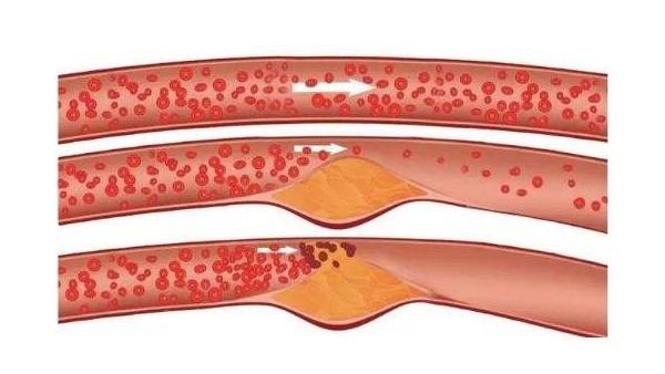 老年人如何解决腿部血栓问题