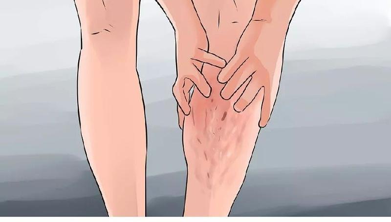 下肢静脉曲张症状会产生的表现