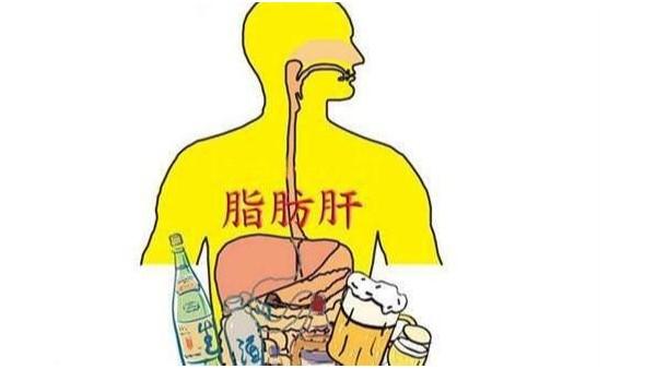 几招教你改善脂肪肝症状