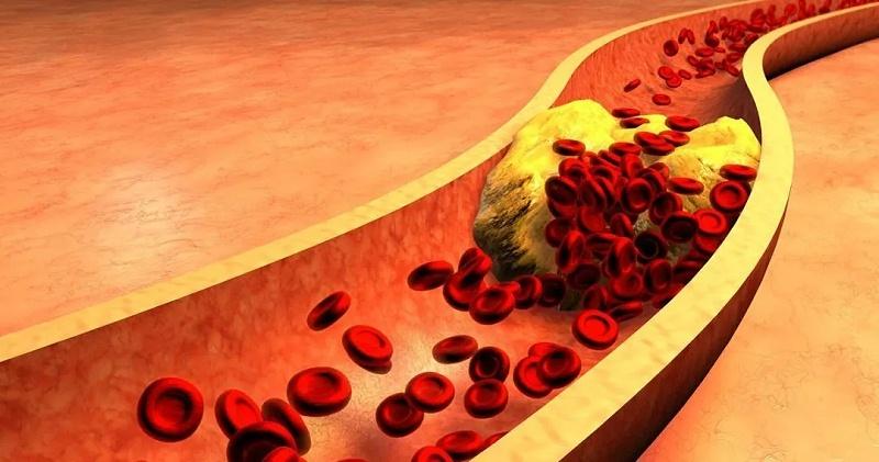 水蛭素、醋软化血管