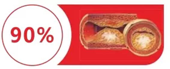 水蛭素血管堵塞