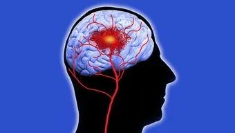 水蛭素、血管病、脑梗