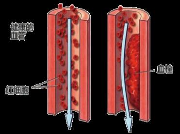 水蛭素、血栓、新冠肺炎