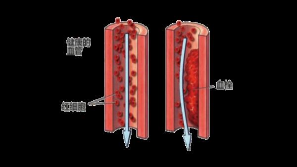 科普知识分享第二弹:血栓与微循环