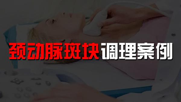 服用水蛭素后颈动脉斑块改善案例