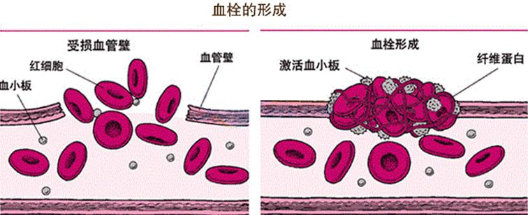 水蛭素,血栓