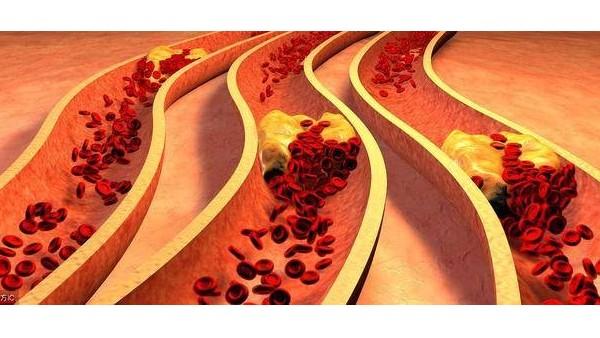 怎么样改善血管硬化