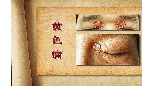 眼部两个变化,提示血脂升高