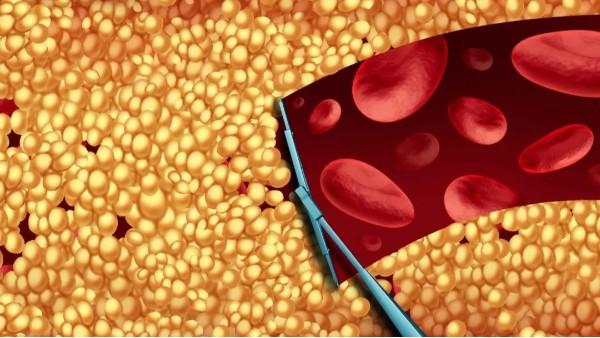 中国成人血脂异常患病率已高达34.7%!水蛭或能助破局!