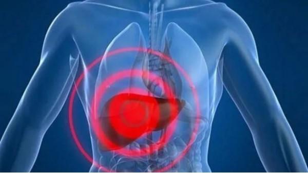 """历时14年研究:「轻度脂肪肝」伤害可不""""轻"""",会增加7成死亡风险!"""