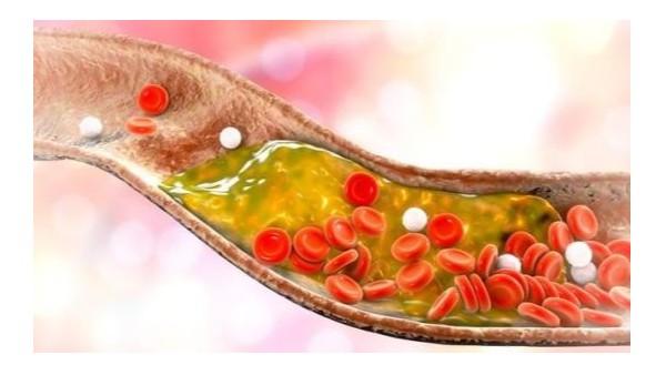 服用科康水蛭素后血脂异常改善案例