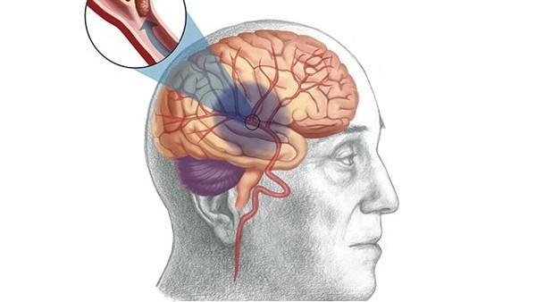 水蛭素如何预防脑中风及改善中风后遗症