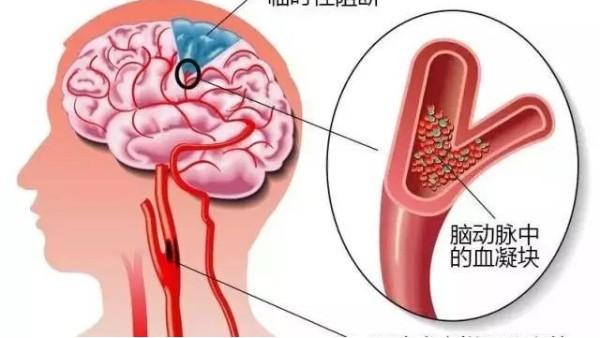 脑梗塞有什么预防方法吗