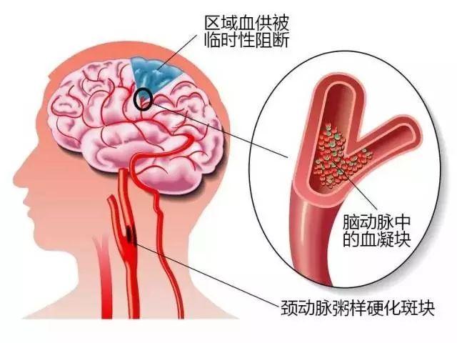 脑梗塞有什么预防方法