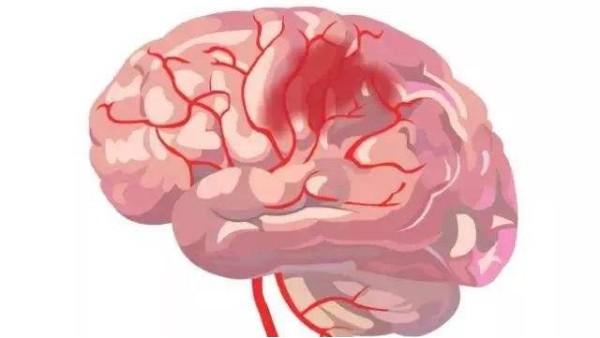 脑卒中不可怕,可怕的是你不知道发病前兆