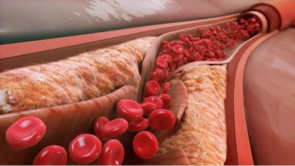 血脂高的人日常饮食该注意什么