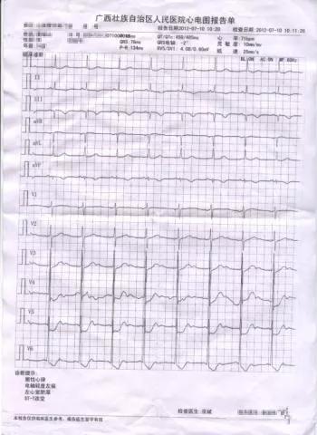 水蛭素、血管硬化、颈动脉斑块